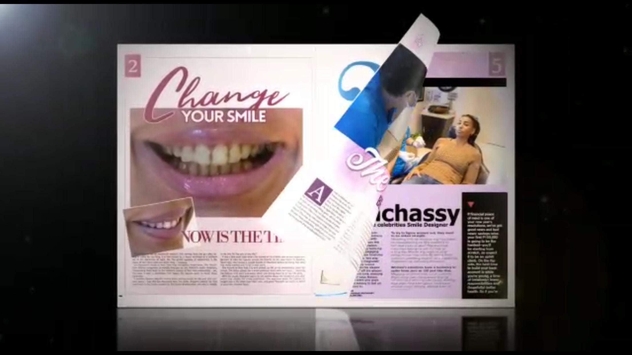 """صورة لأول مرّه في  طب تجميل الأسنان …  د. أنشاصي مع النجوم على """"إنستاغرام"""" يجيب سائليه"""